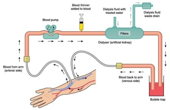 what-is-hemodialysis